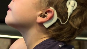 "Push for ""life changing,"" cochlear implant surgery in Montreal"