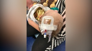 Woman shares photo of sick baby who wasn't vaccinated as a warning to parents