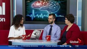 The link between stroke and dementia