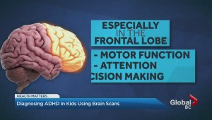 Diagnosing ADHD in kids using brain scans