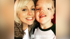 Instagram apologizes for removing photo of autistic boy with facial birth defect