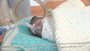 Premature baby day celebrates tiny miracles