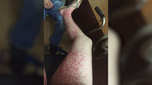 Mom warns against ticks in pumpkin patches after life-threatening bite