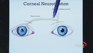 Sick Kids surgeons pioneer new surgery that restores lost feeling in eye.