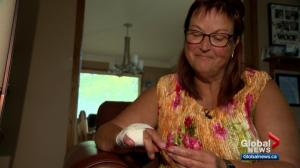Woman has warning for others after her finger is severed on an Edmonton waterslide
