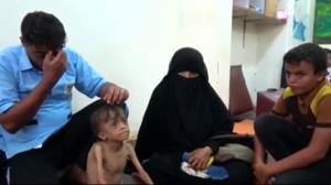 Famine in Yemen made worse by conflict