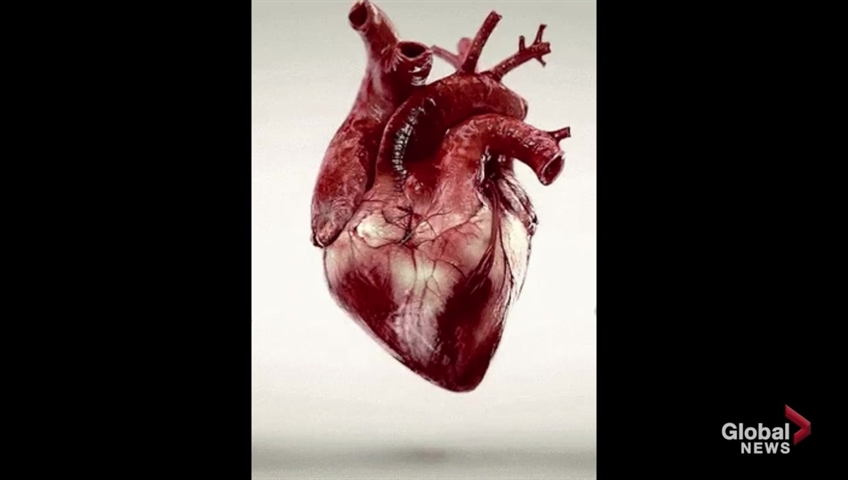 Large U.S. study goes against 'common wisdom' on need for heart procedures