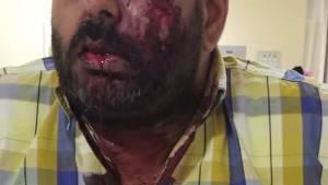 Taxi driver speaks after brutal attack