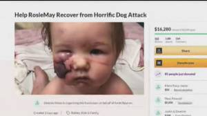 B.C. baby recovering in hospital after dog attack on Nakusp beach (01:16)