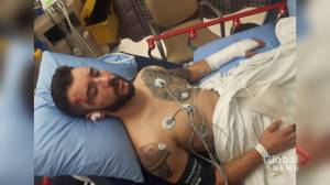 New Brunswick man back on his feet after hit and run incident