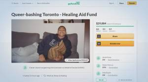 Toronto police launch investigation into alleged aggravated assault (01:58)