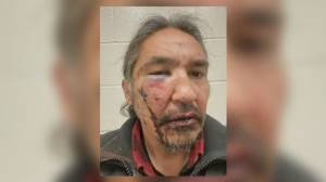 Feds urged to investigate alleged police beating of First Nations chief (02:56)