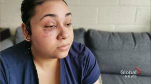 Halifax mother says she was physically assaulted by Halifax police