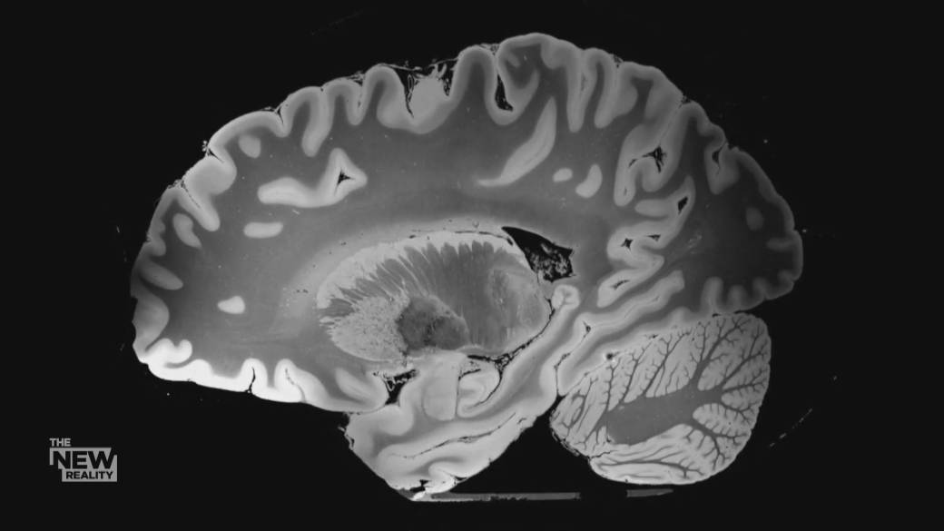 Click to play video 'Coronavirus: How the brain is being impacted by COVID-19'