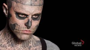 Montreal's 'Zombie Boy' death ruled accidental