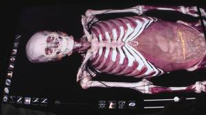 New 3-D 'corpse' teaches at SFU