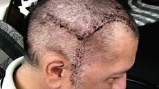 Against the Odds: Brain aneurysm survival