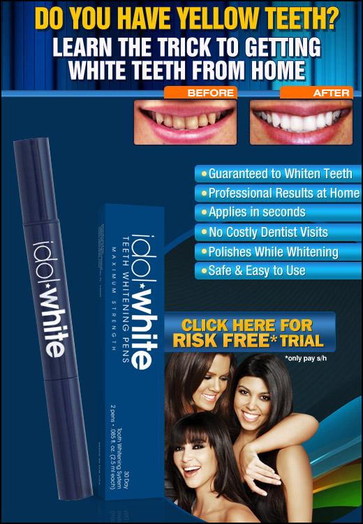Idol White: Unique Teeth Whitening System