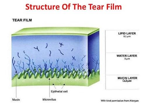 خشکی چشم و درمان آن