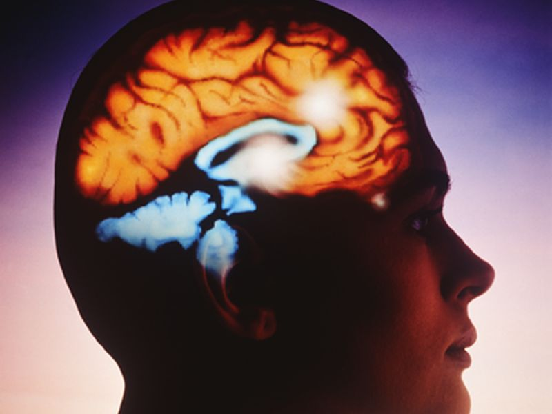 News Picture: Blood Thinning Drug May Be Safer Option Against Recurrent Stroke