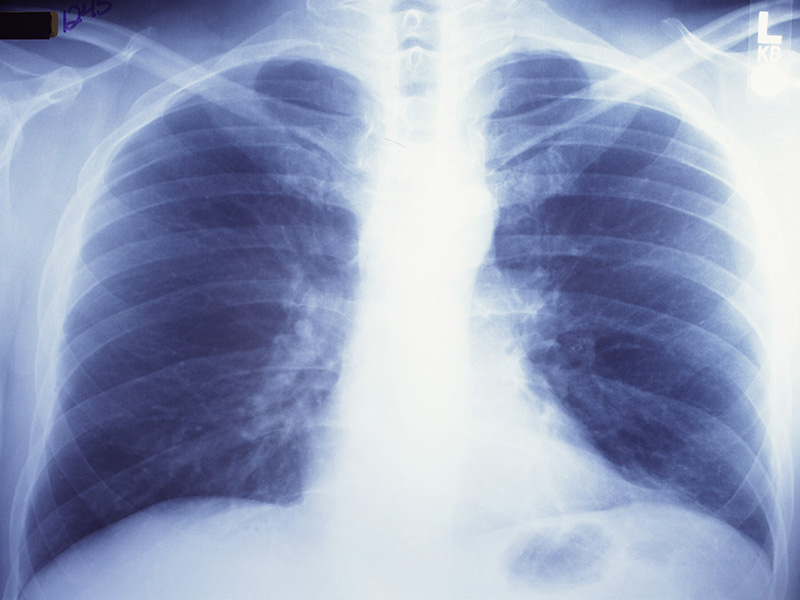 News Picture: Injured Lungs Can Be Regenerated for Transplant: Study