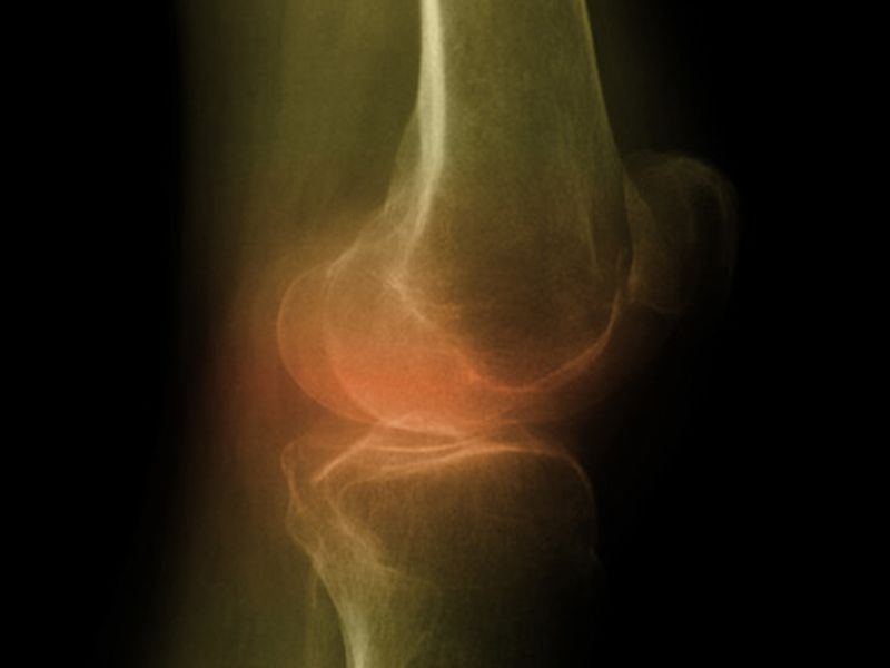 Knee Arthritis: Steroid Shots May Not Help Long-Term, Ozone Injections Promising