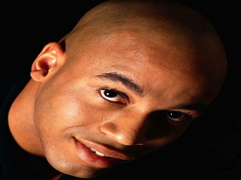 News Picture: A Bone Drug That Treats Baldness?