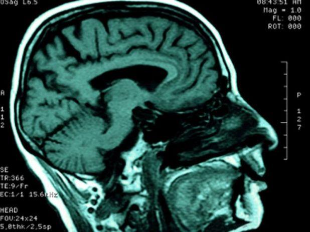 News Picture: Schizophrenia Affects Brain's Communication Network