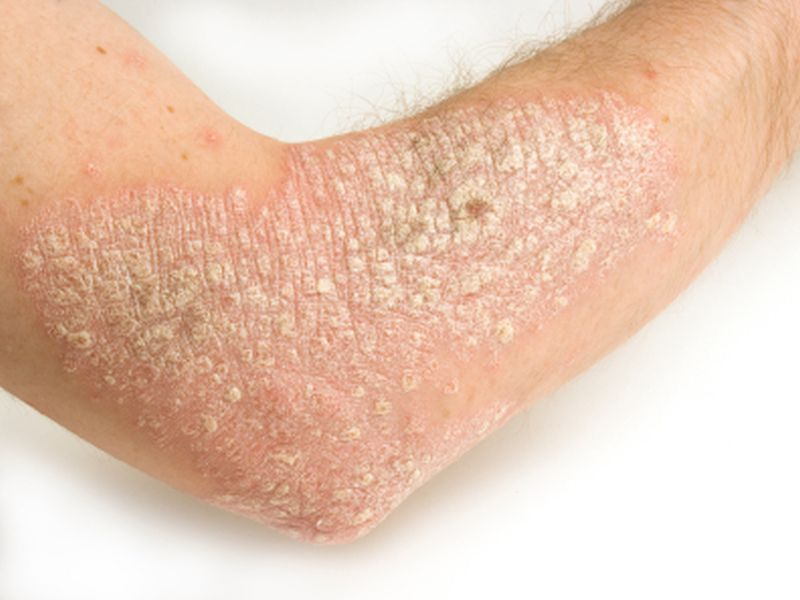 News Picture: Severe Psoriasis Linked to Higher Risk of Earlier Death
