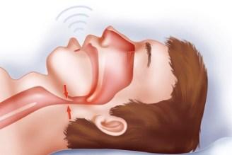 sleep apnoea - SLEEP APNEA: Introspect, Side Effect, and Solution