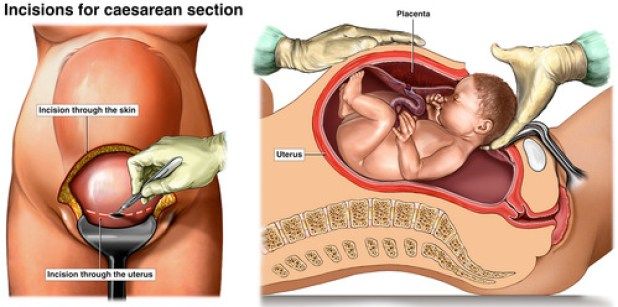 Image result for c section