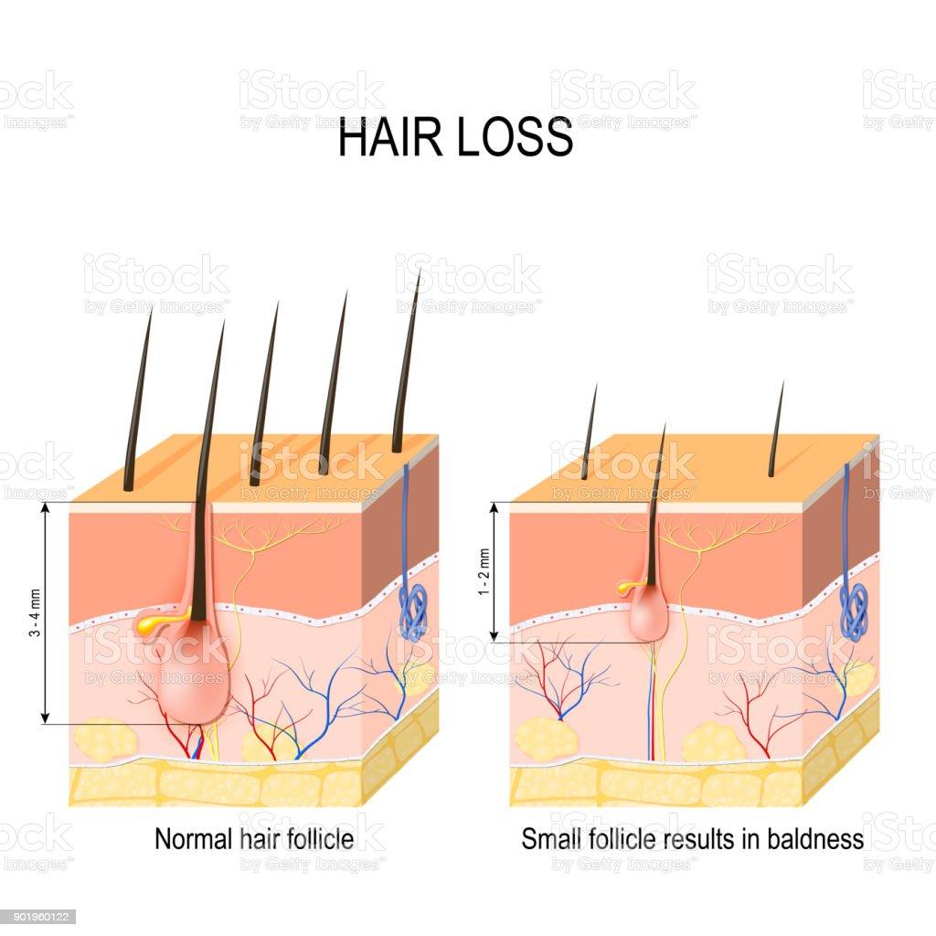 Royalty Free Alopecia Areata Clip Art, Vector Images
