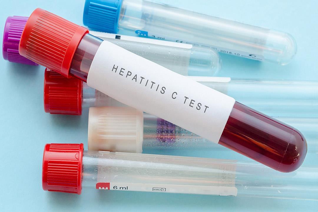 فيروس سي قد يسبب أعراض غير كبدية كيف تعالج الكونسلتو