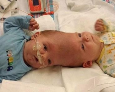 Tvillingarna föddes med sina huvuden ihop – men se dom nu efter mirakel-operationen!