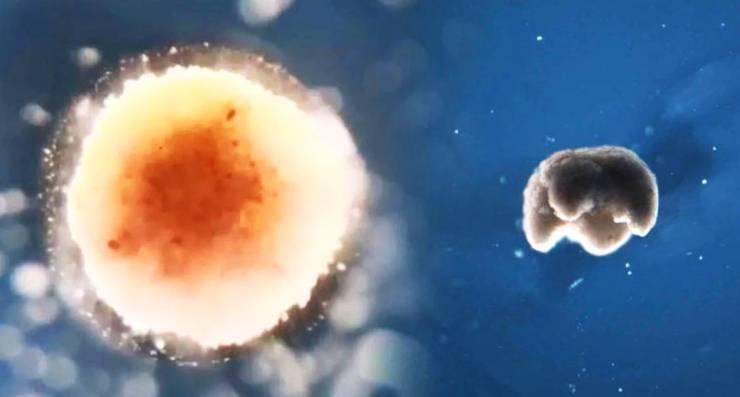 """Salud: científicos descubren posible """"apagado"""" para las células cancerosas"""