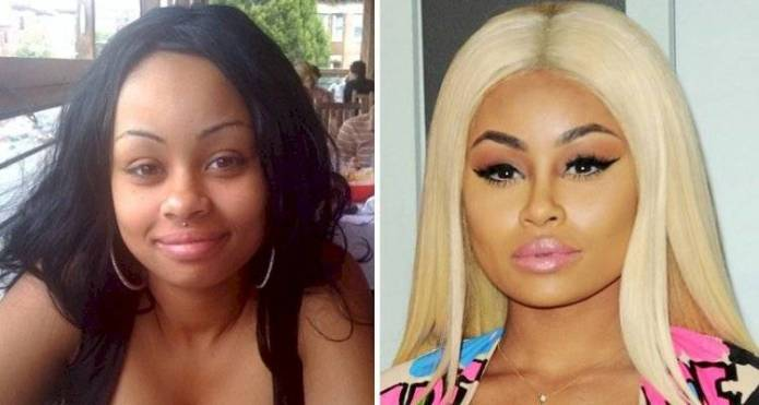 Blac Chyna: So was the transformation after the surgeries to look like a Kardashian
