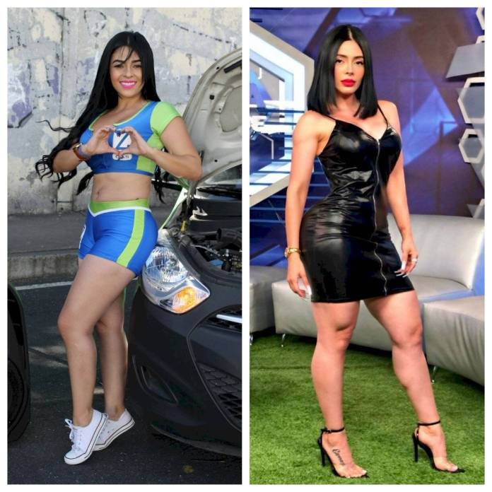 Sandy Gomez before and after