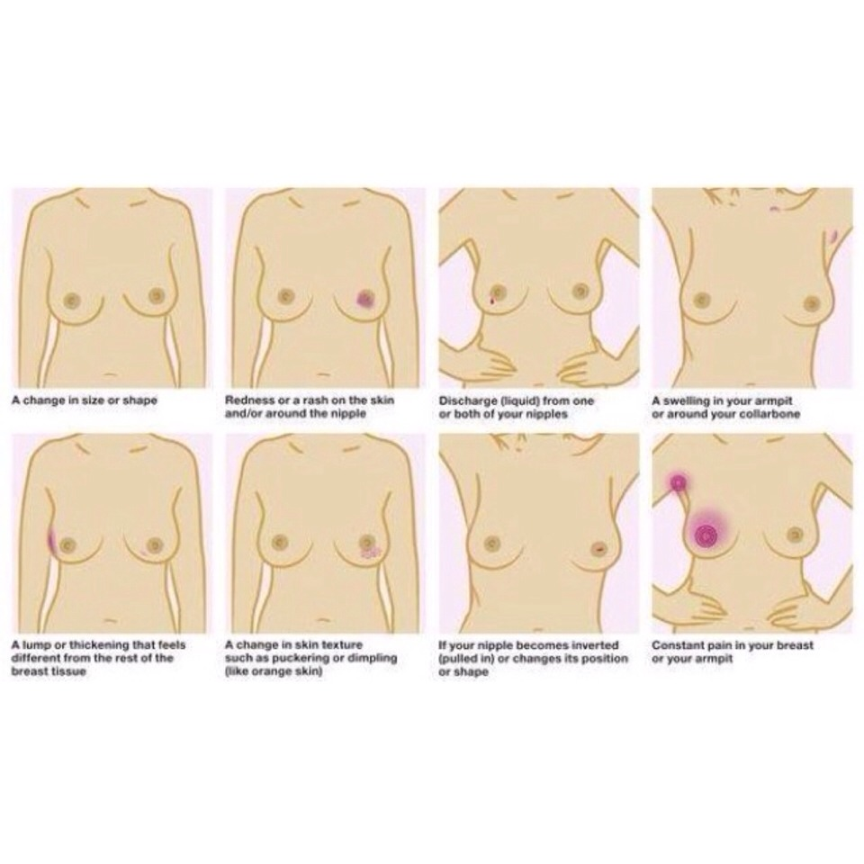 The Breast Cancer Symptoms Musely
