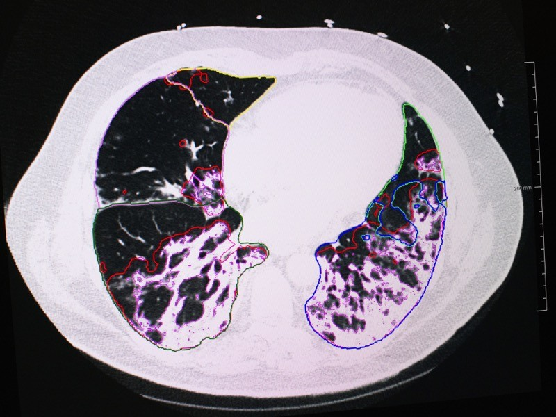 A Covid-19 patient's reduced lung capacity MRI scan results in the intensive care unit (ICU), France.