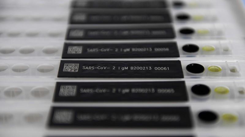 COVID-19 coronavirus antibody test kits.