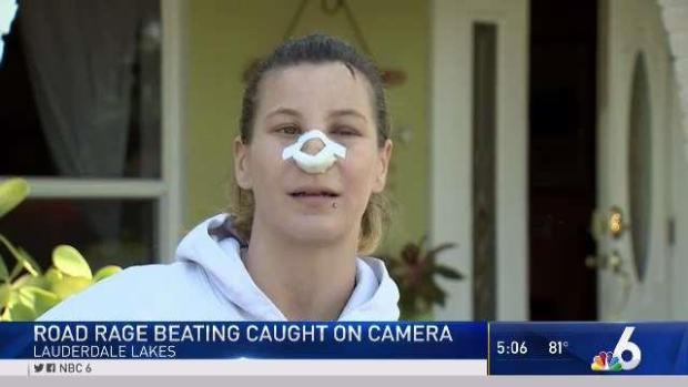 https://i2.wp.com/media.nbcmiami.com/images/620*349/Victim_of_Lauderdale_Lakes_Road_Rage_Attack_Speaks.jpg?w=1060&ssl=1