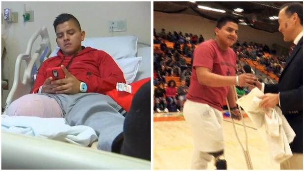 [NY] Star Student Who Lost Leg in Freak Accident Will