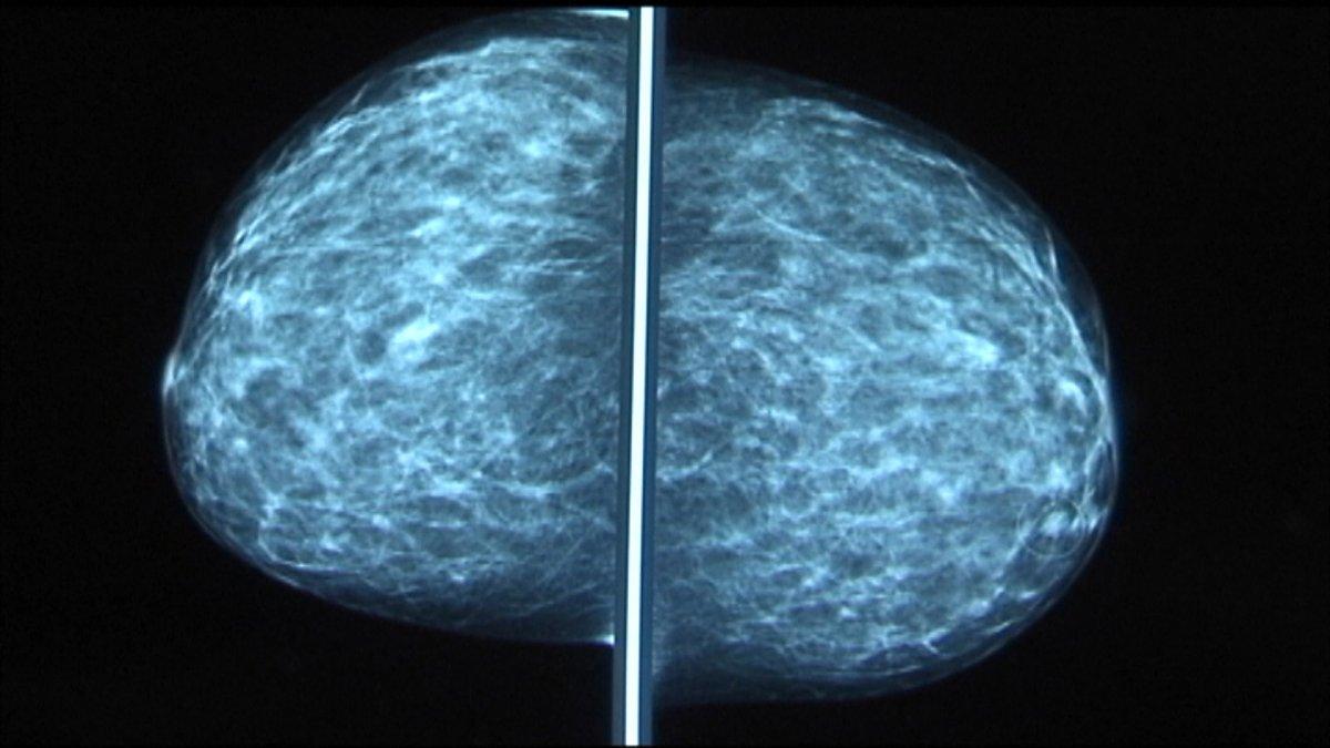 www.nbcphiladelphia.com: Doctors Say Women Should Schedule Mammogram Around COVID-19 Vaccine