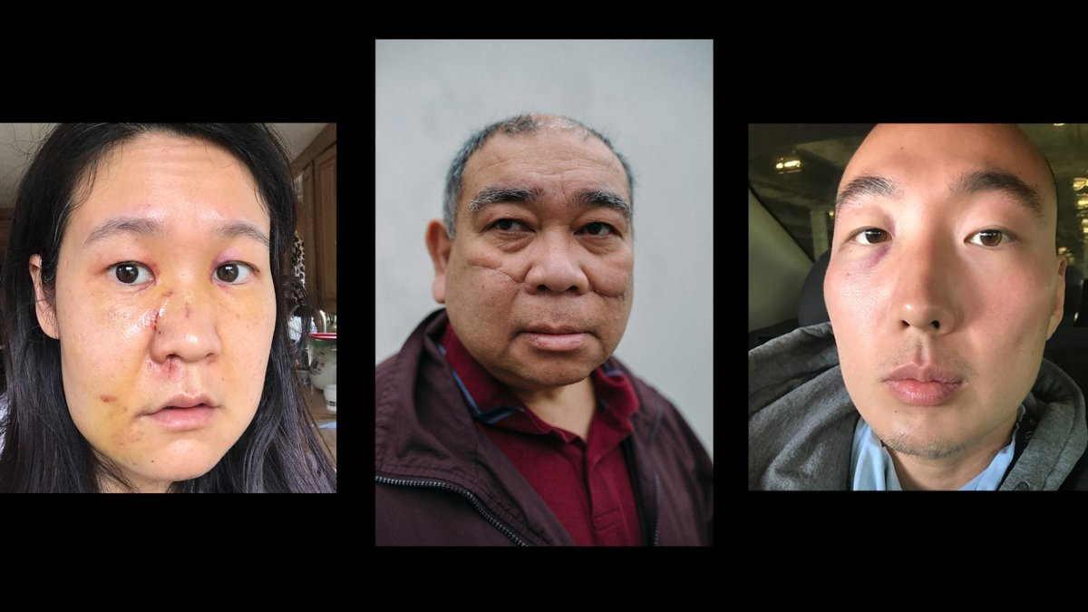 3 Survivors of Random Attacks Speak Out Against Anti-Asian Violence to 'Prevent This From Happening Again'