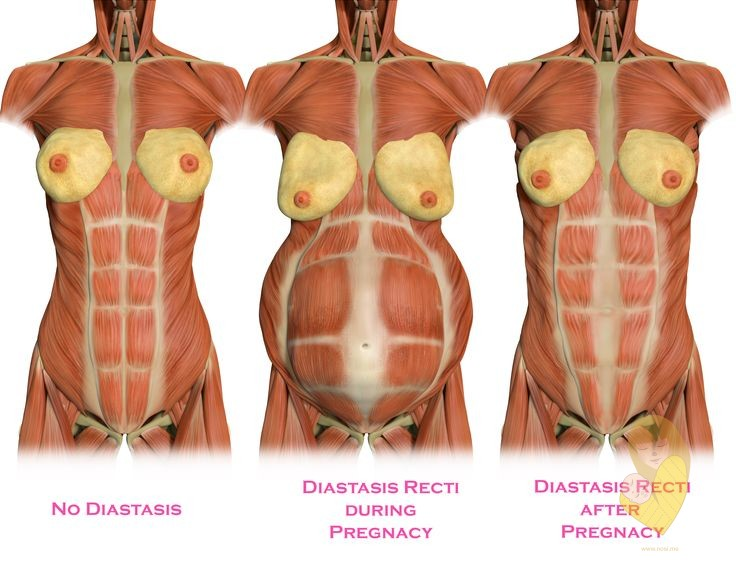 diastasis recti izgled mišića webmd
