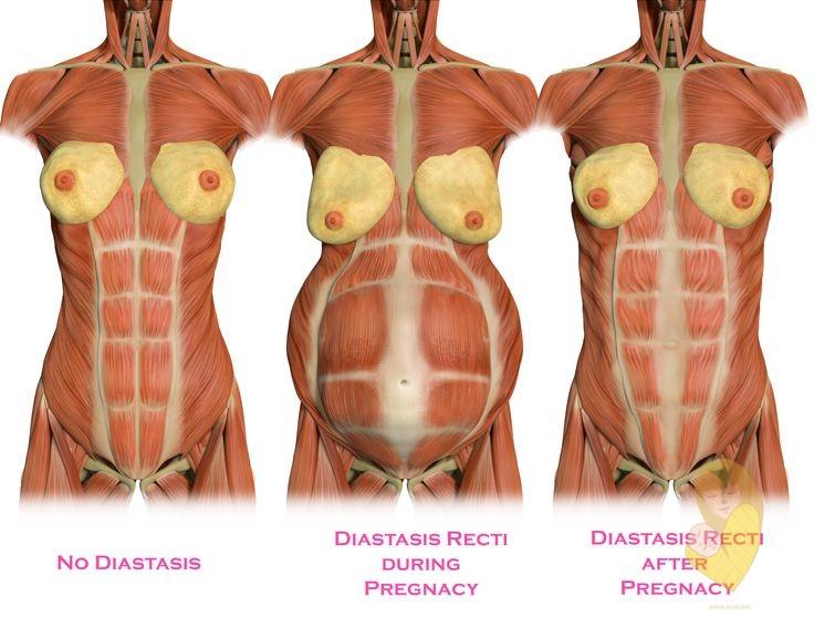 diastasis-recti-izgled-mišića-webmd