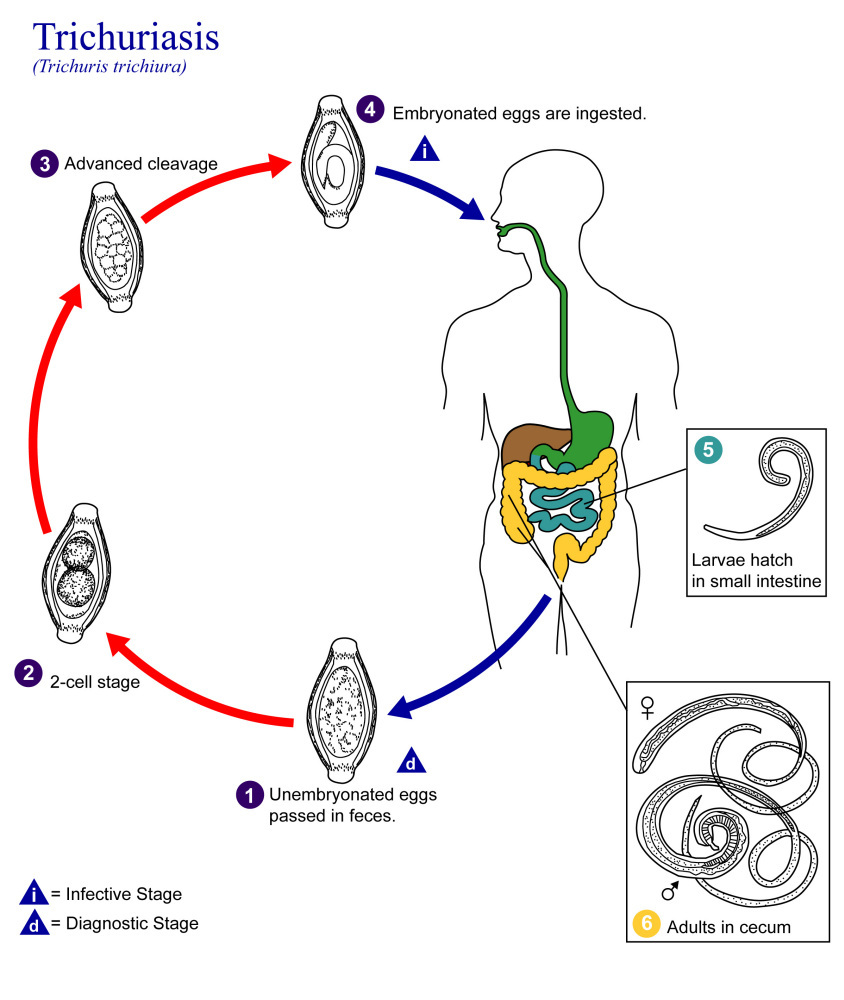 An illustration of the life cycle of Trichuris trichiura