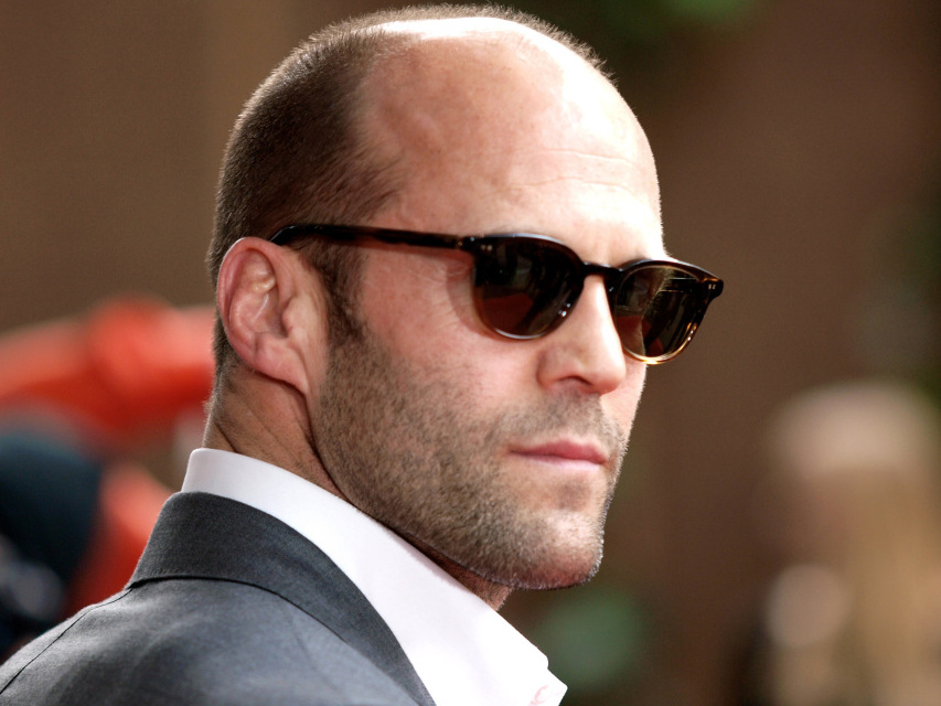 Confronting Your Crown Male Pattern Baldness WBUR News