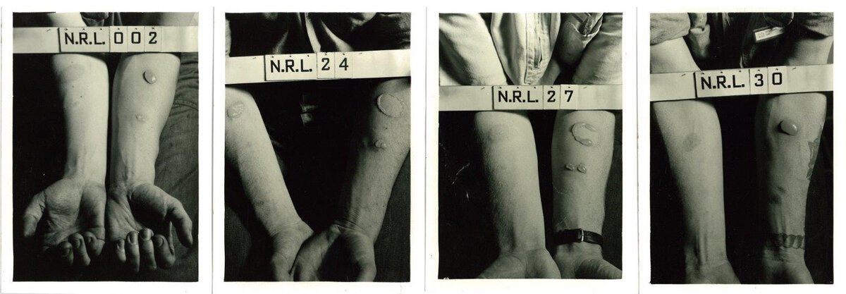 These historical photographs depict the forearms of human test subjects after being exposed to nitrogen mustard and lewisite agents in World War II experiments conducted at the Naval Research Laboratory in Washington, D.C.