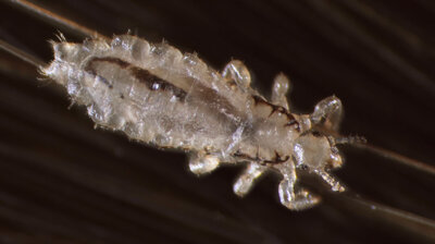 VIDEO: Head Lice Up Close, And All Too Personal